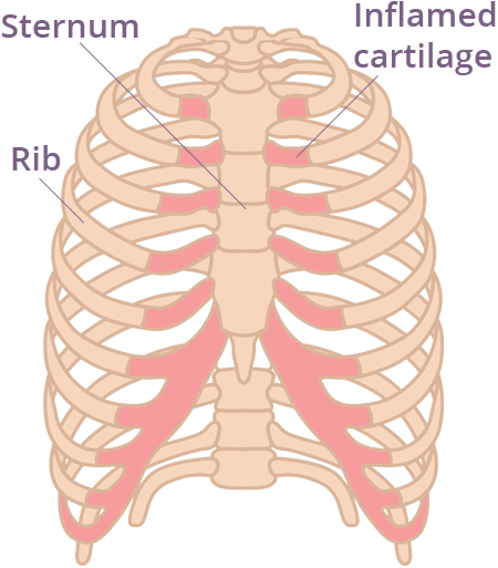 what is costochondritis? symptoms, diagnosis & treatment, Skeleton
