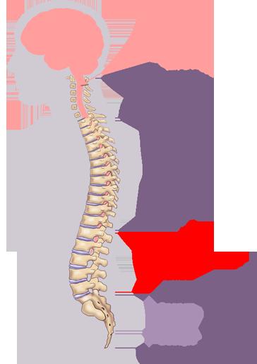 Anterolisthesis Causes Symptoms Diagnosis Amp Treatments
