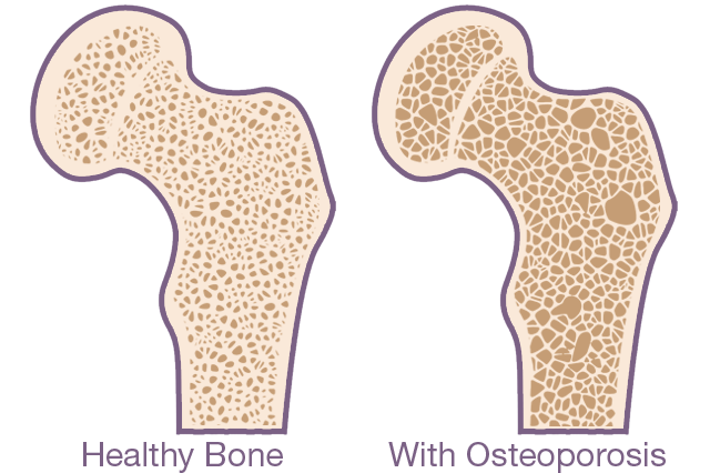 what is osteoporosis - bone example